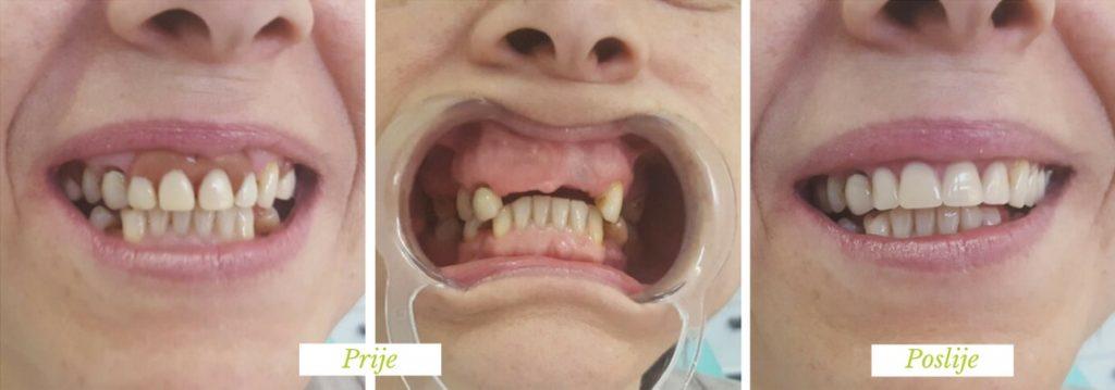parcijalna proteza - stomatolog sarajevo - najbolji stomatolog u Sarajevu - stomatološka ordinacija Sarajevo