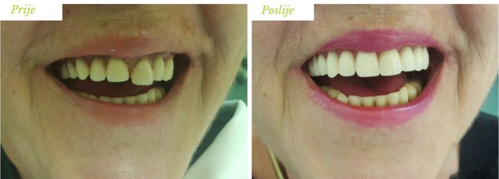 totalna proteza sarajevo - stomatolog sarajevo - zubar sarajevo - www.ordinacija-ais.ba