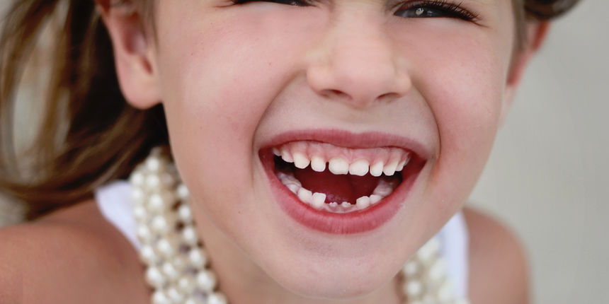 Kucno izbjeljivanje zubi