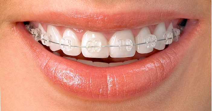 aparatic za zube