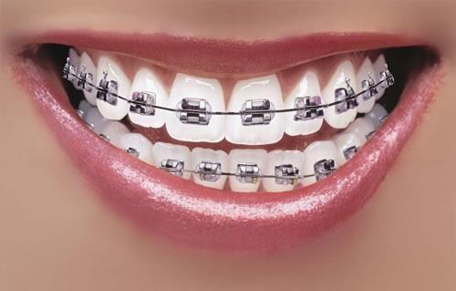Brušenje zuba zupčanika