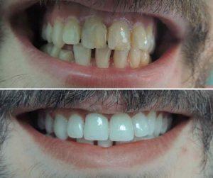ljuspice za zobe