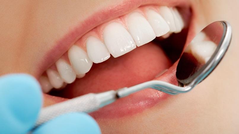Cirkonske navlake za zube