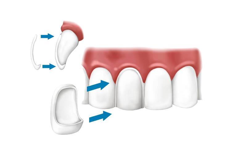 Ljuspice za zube