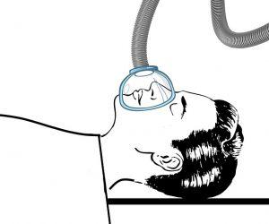 sedacija plinom