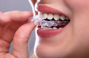 Udlage za zube