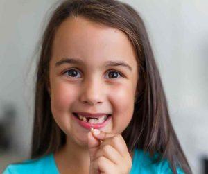 Ispadanje mliječnog zuba