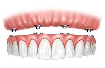 all on four implantati za zube