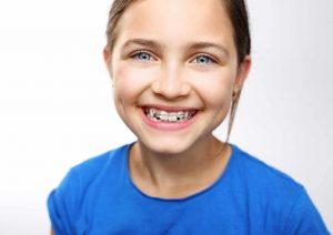 Aparatić za zube kod djece
