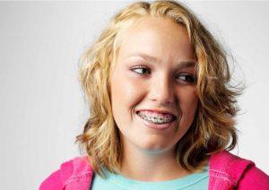 Ortodontski aparatić kod djece