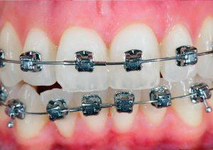 Aparatić za zube - dorasli